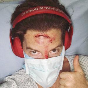 shaun-white-accident-300x300 Day in the Life: Shaun White